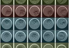 Hur kan genetisk testning av IVF-embryon hjälpa dig?